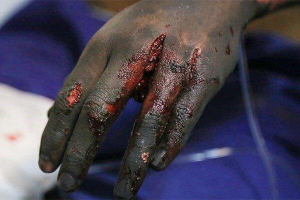 چهارشنبه سوری نیامده قربانی گرفت /انگشت یک نوجوان گلستانی قطع شد
