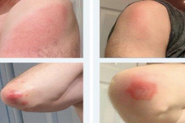 عارضه پوستی پس از تزریق واکسن مدرنا