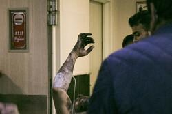 مصدومین چهارشنبه سوری سال ۹۹ در تبریز (حاوی تصاویر دلخراش)