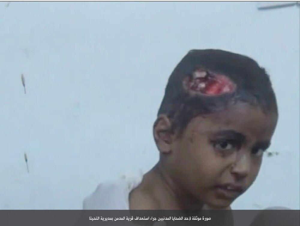 هدیة خادم الحرمین الشرفین لاطفال الیمن