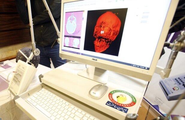 سمپوزیوم تازههای نقشهبرداری مغز ایران برگزار میشود