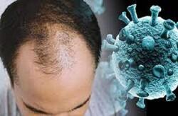 ارتباط ژن طاسی در مردان با افزایش خطر کووید ۱۹