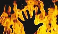 افزایش سه درصدی مرگ و میر براثر سوختگی در مازندران