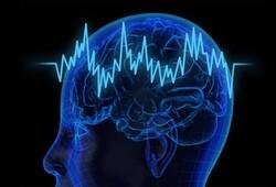 پایانه ۱۶ کاناله برای تحریک سلول های عصبی طراحی شد