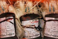 دستگاه پرتودهنده خون در کشور ساخته می شود