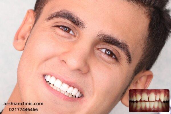 ۵ موردی که قبل از کامپوزیت دندان باید بدانید