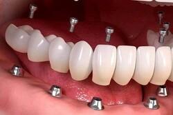 بررسی قیمت ایمپلنت دندان در سال ۱۴۰۰ + کد تخفیف ۲۰ درصد