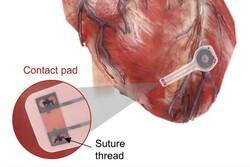 تولید اولین ضربان ساز مصنوعی قلب که در بدن حل میشود