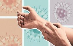 بروز مشکلات پوستی در ۷ درصد بیماران کرونایی