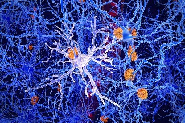 درمان تشنج با سازوکار خوددرمانی مغز انسان