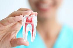 چرا از ایمپلنت دندان استفاده میکنیم؟