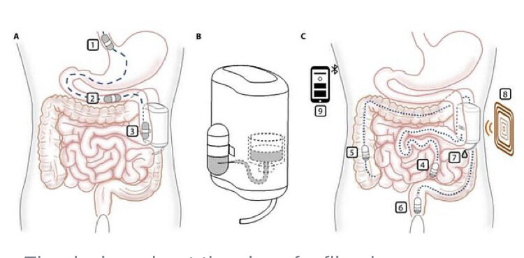 پمپ انسولین قابل ایمپلنت برای دیابتی ها