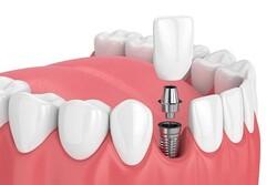ایمپلنت دندان چیست و انواع ایمپلنت دندان