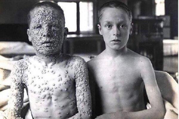 واکسن زدن یا نزدن؟ مسئله این است!