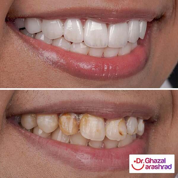 داشتن لبخندی زیبا با انجام لمینت دندان