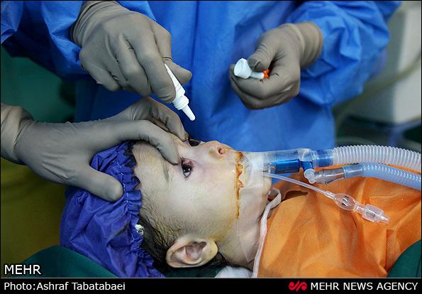 هزینه عمل لازک در بیمارستان فارابی