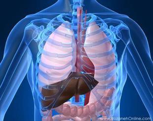 بررسی روشهای درمانی گسترش سلولهای سرطانی در کبد