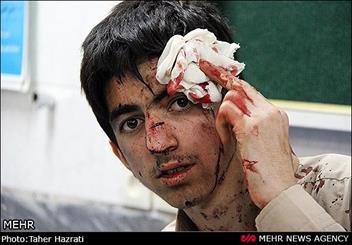 دست و صورت بیشترین نواحی آسیب دیده چهارشنبه سوری است
