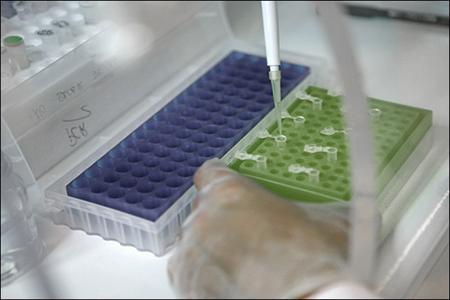 موفقیت محققان کشور در ساخت حسگرهایی برای تشخیص سرطان پروستات