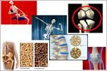 بهبود آرتروز زانو با تزریق پلاسمای غنی از فاکتور رشد